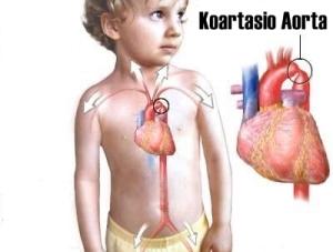 Obat Herbal Jantung Bocor Untuk Anak